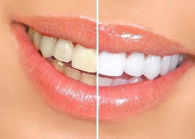 o_dental