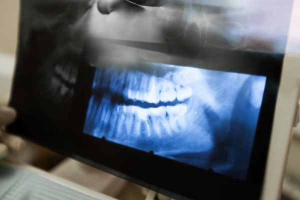 7 Conditions When Tooth Extraction Is Needed