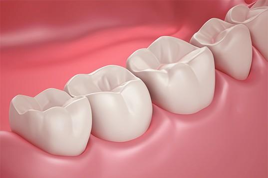 Periodontics Gum Related-Procedures